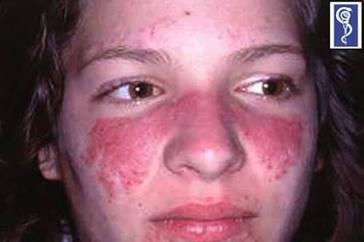 Lupus eritematoso, por deposito de complejos inmunes, eritema en alas de mariposa